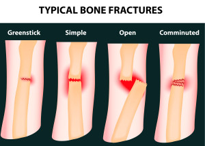 Bone Fractures and Other Preventable Injuries - Windom Nursing Home Abuse Lawyers Kenneth LaBore and Suzanne Scheller
