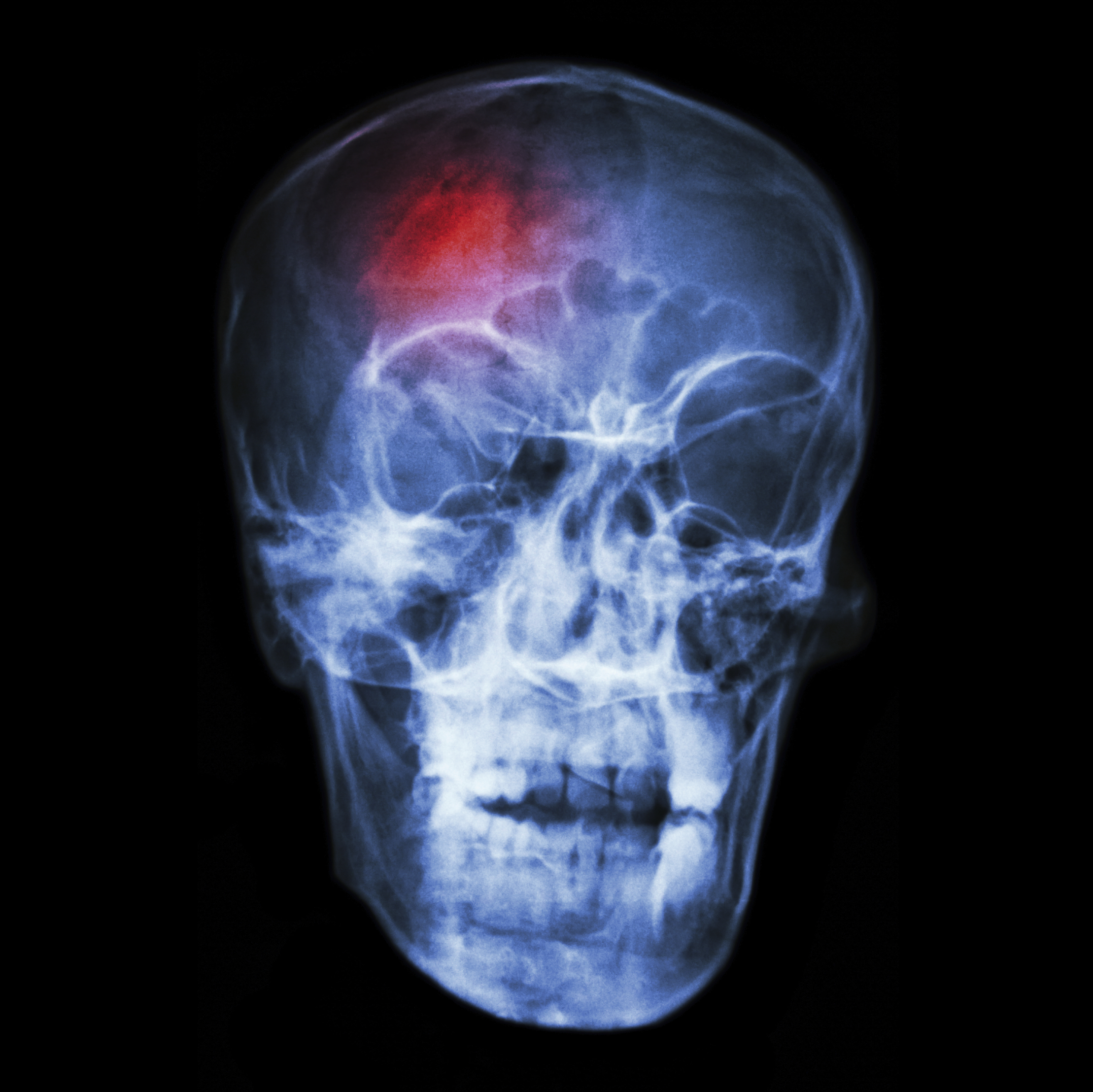 head injuries Nontraumatic brain injuries happen when something inside the brain alters the health or normal functioning of the brain nontraumatic brain injuries can be caused by illnesses such as encephalitis and meningitis, or can be related to a stroke or tumor.