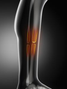 Neglect of Health Care, Fall and Fracture to Leg