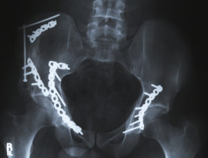 Hip Fractures and Other Fall Injuries and Neglect - Resident Falls After Being Left Alone Unsupervised in the Bathroom