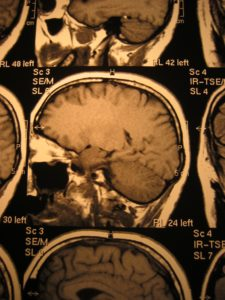 Elder Abuse Falls Subdural Hematoma Head Injuries