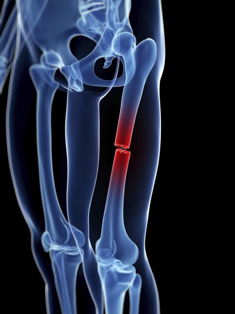 Femur Fractures Due to Nursing Home Falls