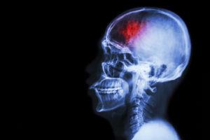 Nursing Home Fall Injuries Including Head Injury and Subdural Hematomas