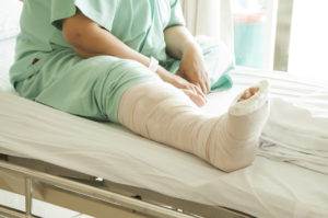 Broken Leg, Fractured Hip, Head Injury, Broken Bones and Other Nursing Home Fall Injuries