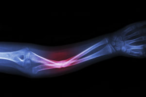 Fractures From Falls and Other Injuries - Winsted Nursing Home Abuse Lawyers Kenneth LaBore and Suzanne Scheller