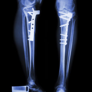 Fractures and Other Injuries - Multiple Fractures After a Fall and Other Serious Resident Health and Safety Risks