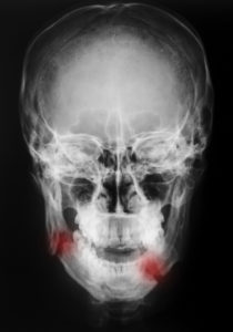 Face and Head Injuries From Falls - Jordan Nursing Home Abuse Lawyers Kenneth LaBore and Suzanne Scheller