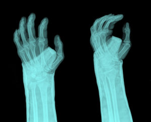 Fractures From Falls and Other Preventable Injuries - Arden Hills Nursing Home Abuse Lawyers Kenneth LaBore and Suzanne Scheller