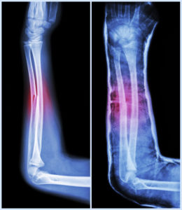 Fractures and Other Injuries - Stillwater Nursing Home Abuse Lawyer Kenneth LaBore and Suzanne Scheller