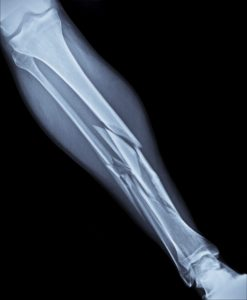 Tibia Fracture - Allegation of Neglect - Fractured Tibia - KSMS Our House in Austin